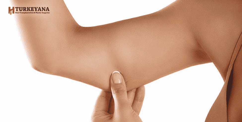Arm Lift Risks and Cost of Treatment