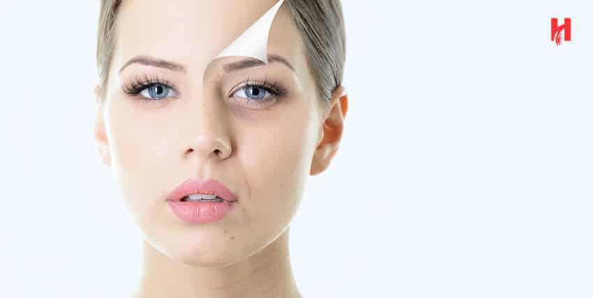 Chemical Peeling types and its benefits for skin
