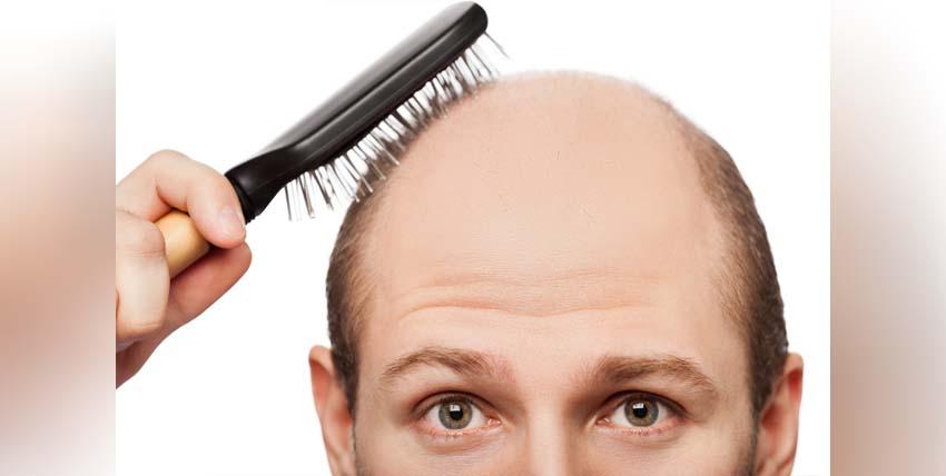 زراعة الشعر في تركيا, كل ما يهمك واكثر!