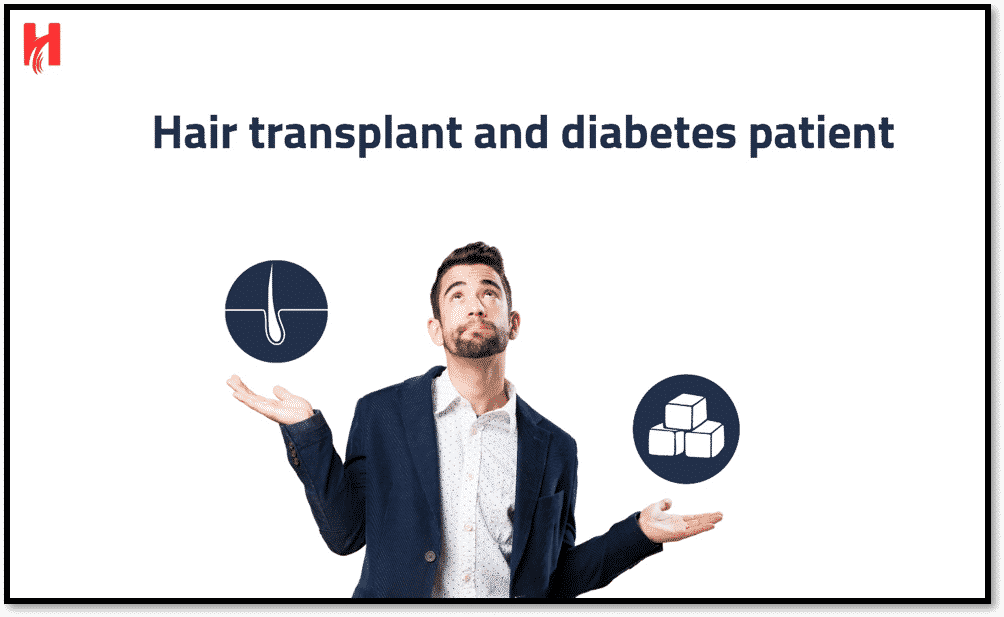 Hair Transplant and Diabetes patient