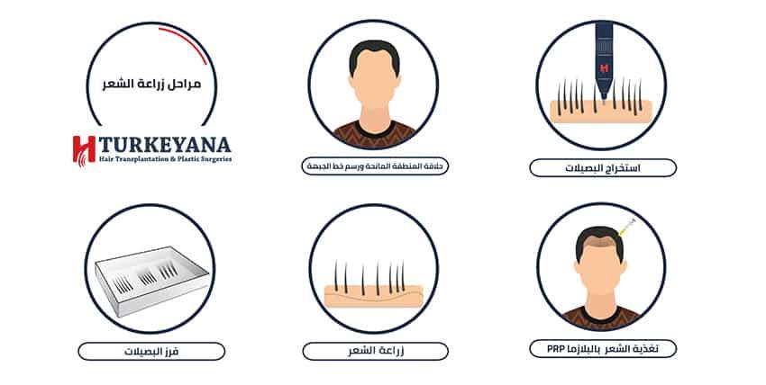 كيف تتم عملية زراعة الشعر من داخل غرفة العمليات
