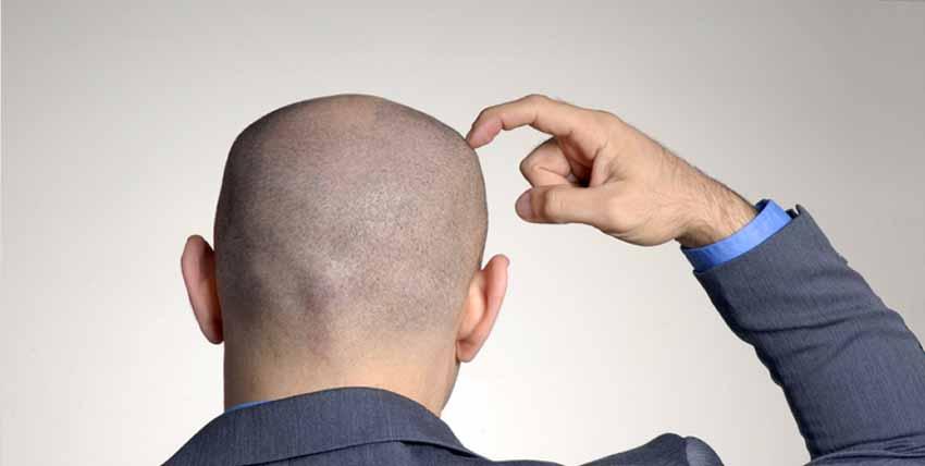 حكم زراعة الشعر وقول الرسول عن زراعة الشعر