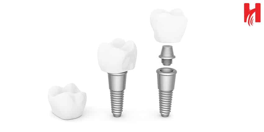 how dental implant is done