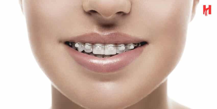 تقويم الاسنان مراحلة وفوائدة وعيوبة