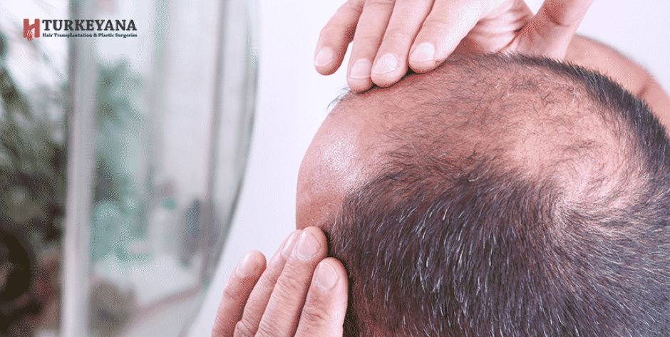 What is the Best-Experienced Baldness Treatment