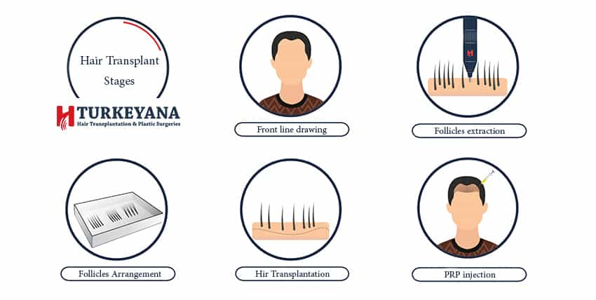 how is hair transplantation being done ?