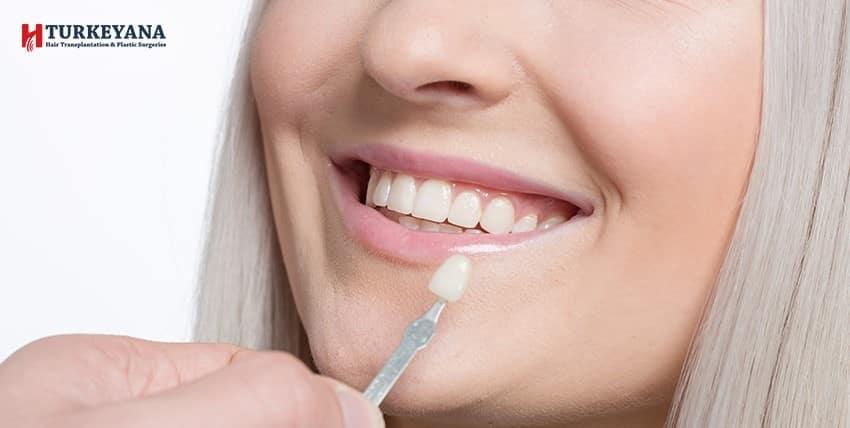 تلبيسات الاسنان، وكيفية اختيار النوع المناسب