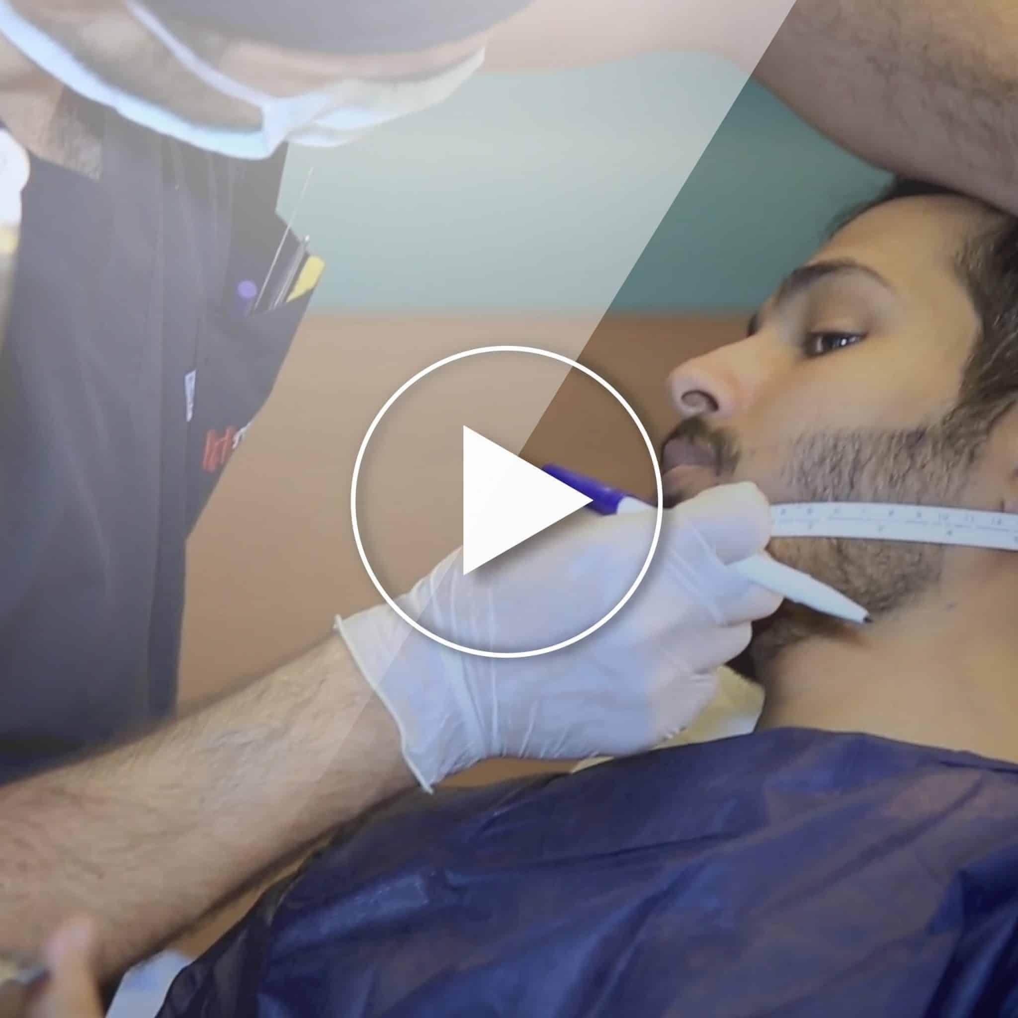 Beard and Mustache Transplantation in Turkey, Beard and mustache transplantation in Turkey