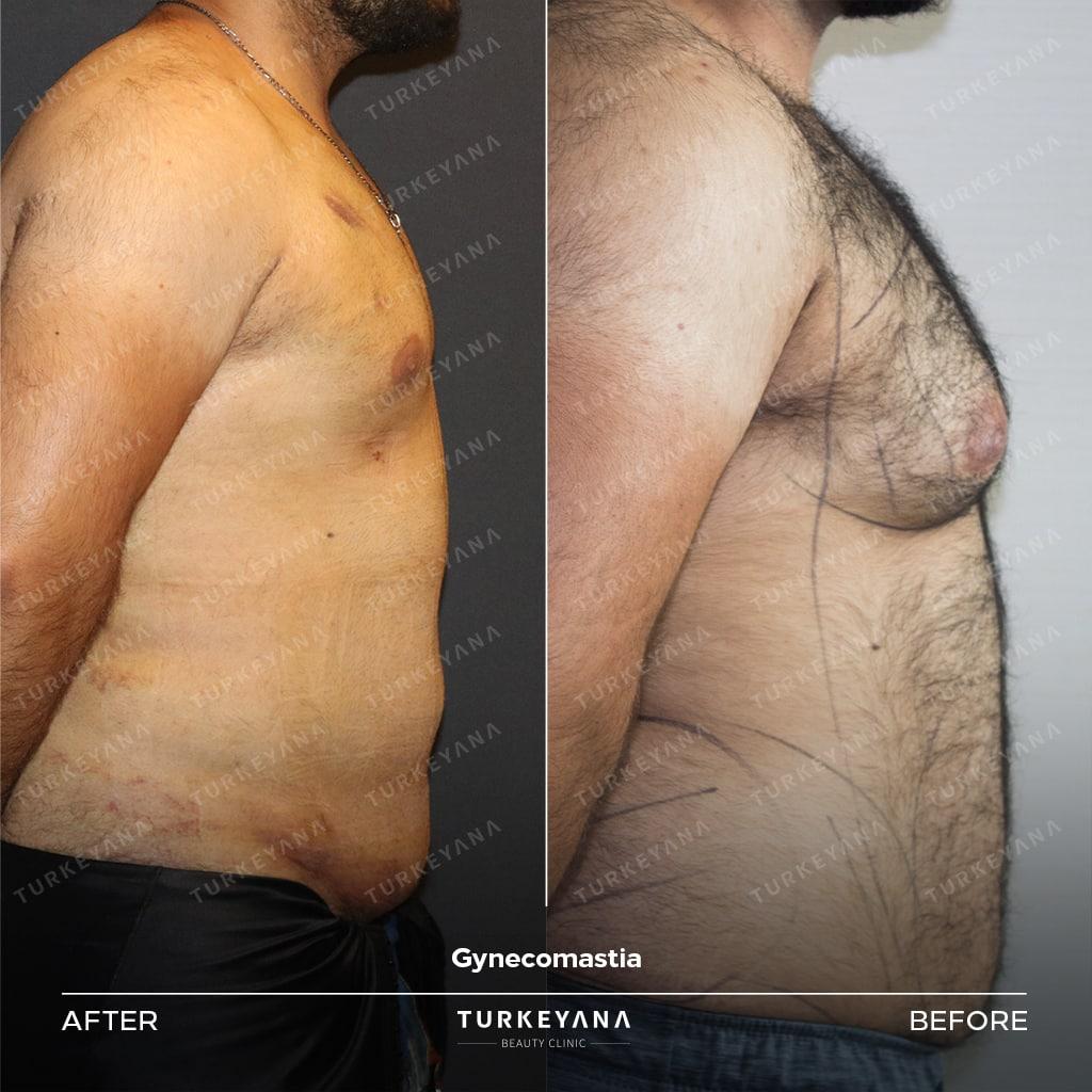 إزالة التثدي عند الرجال, إزالة التثدي عند الرجال