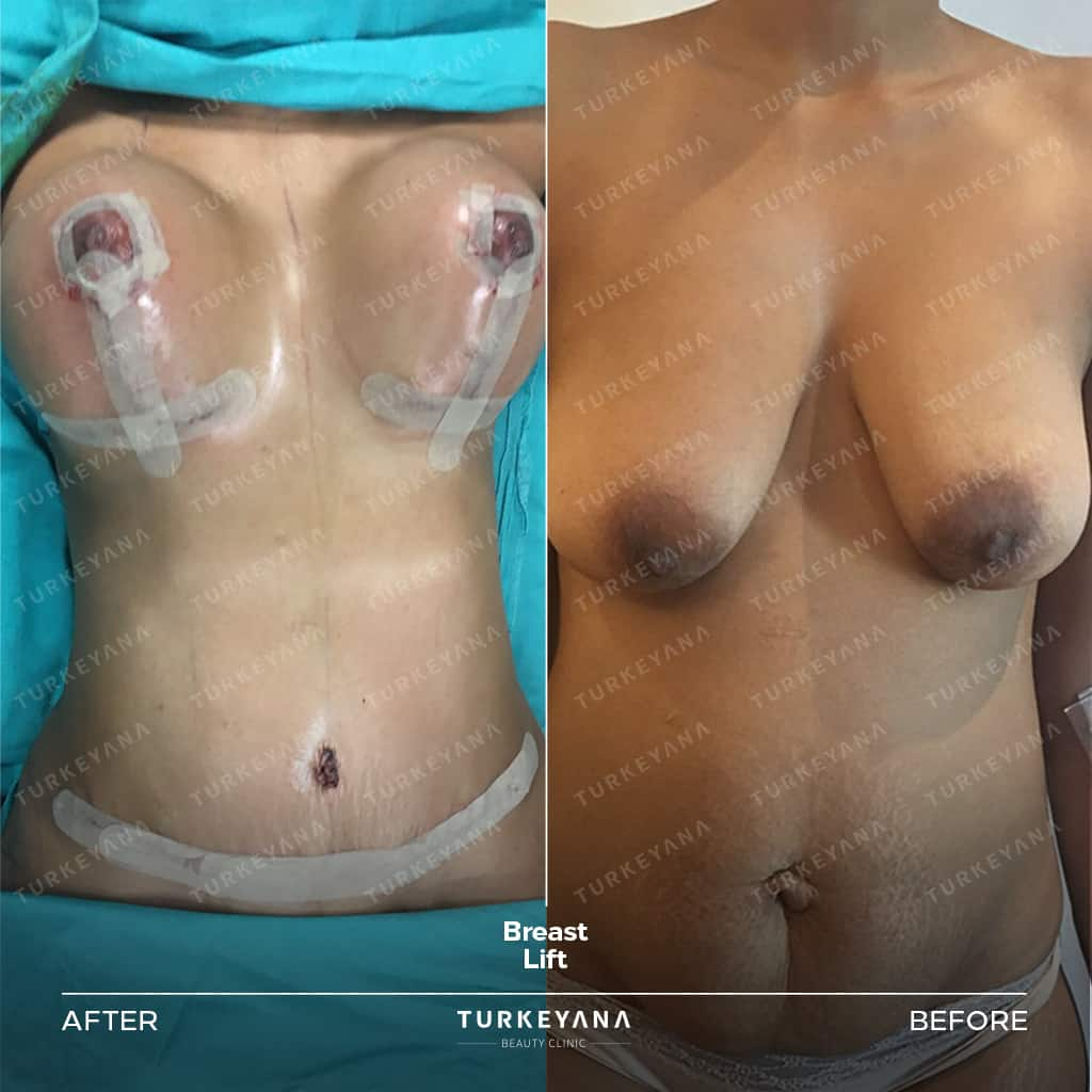 Breast Lift Operation in Turkey, Breast Lift Operation in Turkey