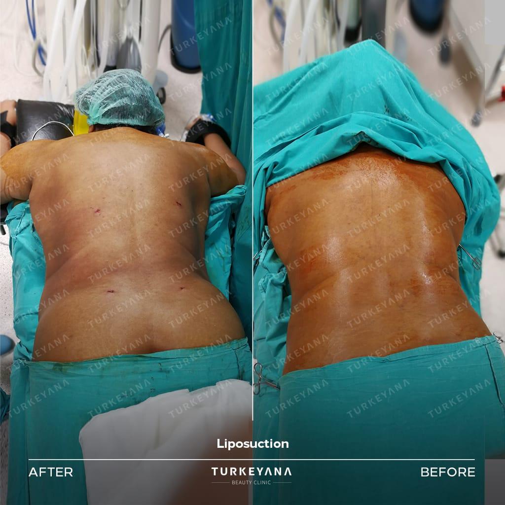 Tummy Tuck Surgery in Turkey, Tummy Tuck Surgery in Turkey