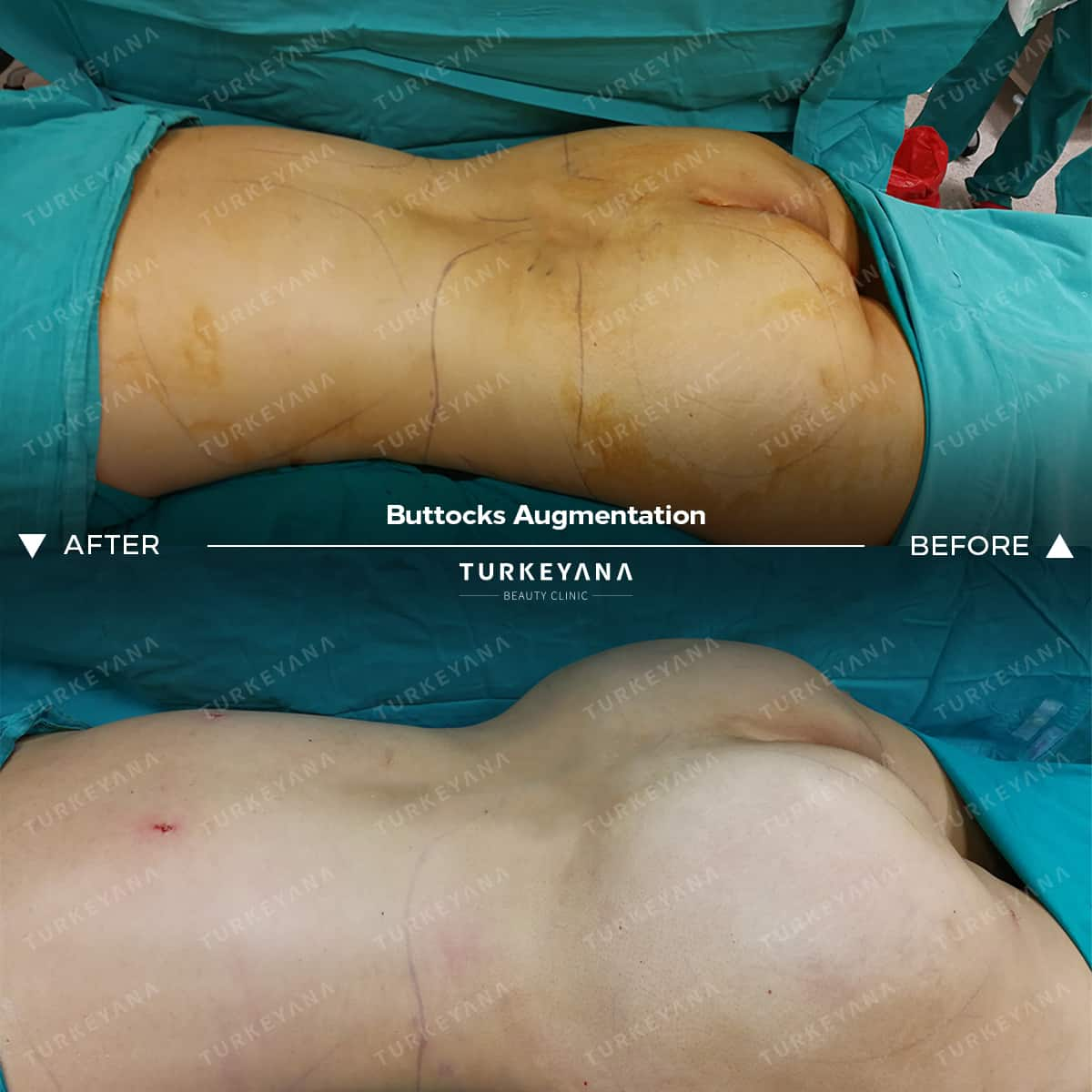 Buttock Augmentation in Turkey, Buttock Augmentation in Turkey