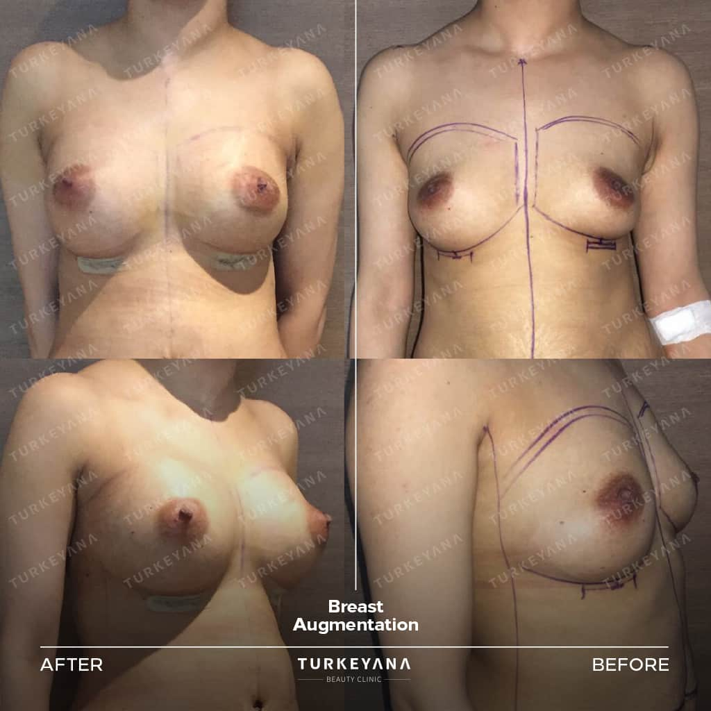 Breast Augmentation in Turkey, Breast Augmentation in Turkey