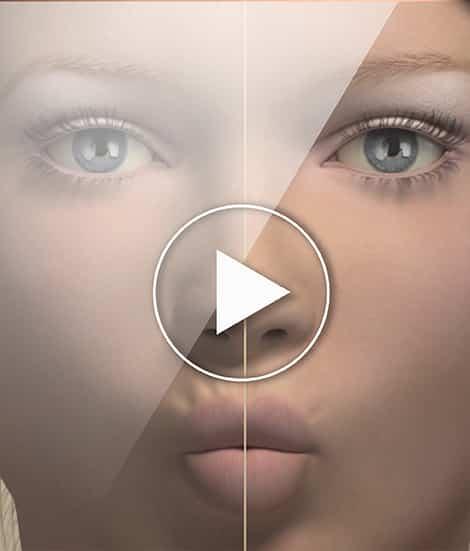 , Lip Augmentation By Filler
