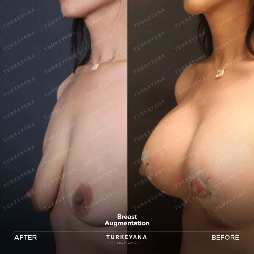 عملية تكبير الثدي في تركيا, عملية تكبير الثدي في تركيا