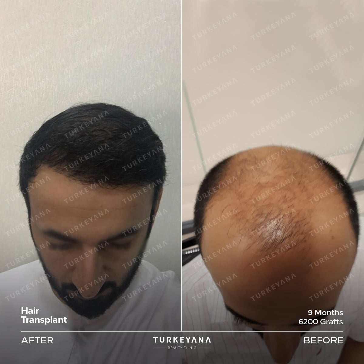 Hair Transplantation For Men in Turkey, Hair Transplantation for men in Turkey