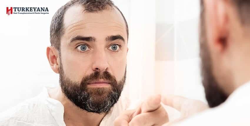 Genetischer Haarausfall, Symptome, wie werden seine Auswirkungen reduziert