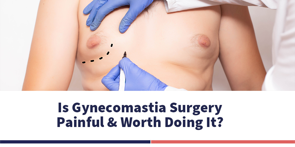IS GYNECOMASTIA SURGERY PAINFUL & WORTH DOING IT?