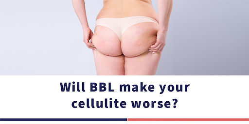 هل تزيد عملية شد الأرداف البرازيلي السيلوليت في الجسم؟
